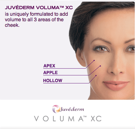 JuvedermVoluma_FaceDiagram