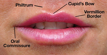restylane-silk_lip_diagram
